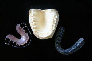 cuanto-cuesta-ponerme-brackets_brackets-transparentes_clinicas-sonrie-guatemala