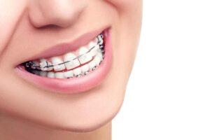 cuanto-cuesta-ponerme-brackets_brackets-cerámica-zafiro-porcelana_clinicas-sonrie-guatemala